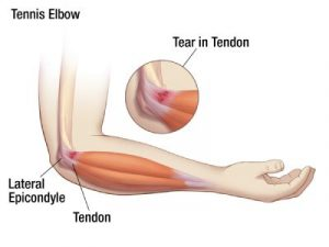 Tennis Elbow Pain Up To Shoulder